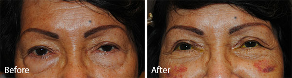 lower eyelid surgery 1